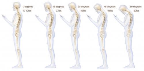 smartphone coloana vertebrala