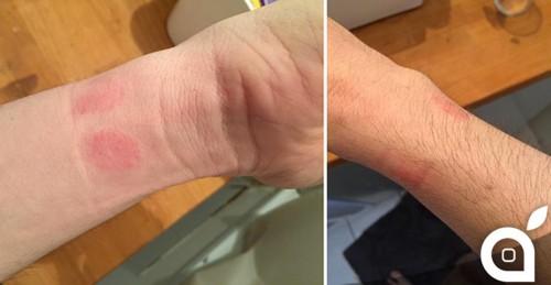 Apple Watch iritatie