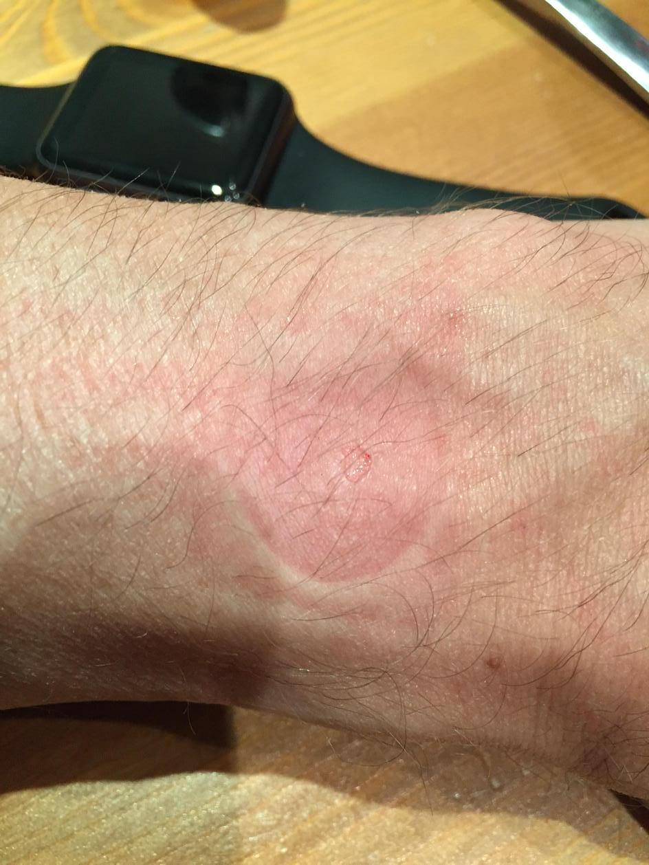 Apple Watch arsura piele 1