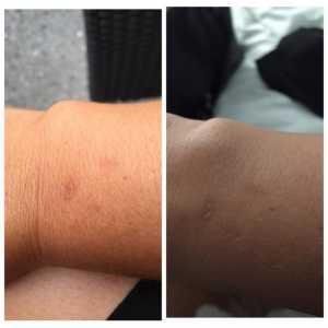 Apple Watch arsura piele