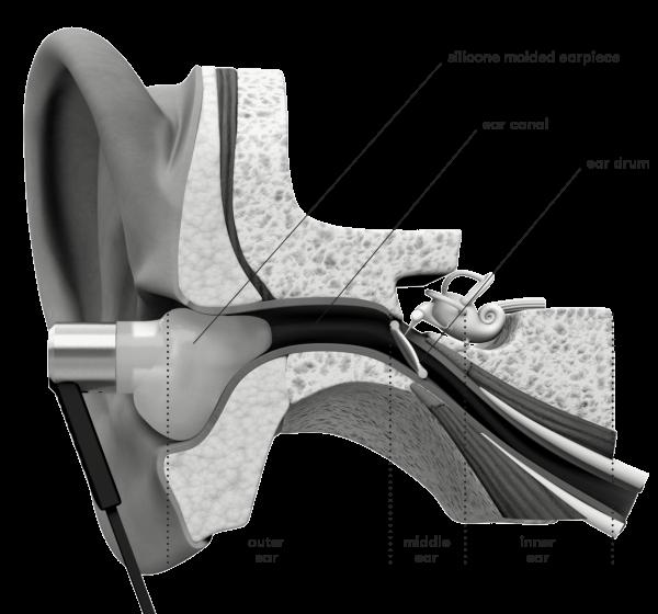 Uvervo casti in-ear personalizate 47jpg