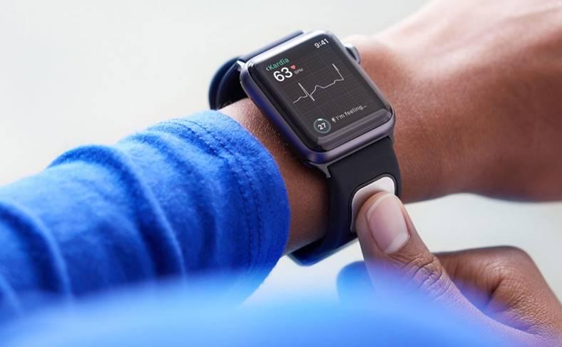 AliveCor KardiaBand electrocardiograma apple watch