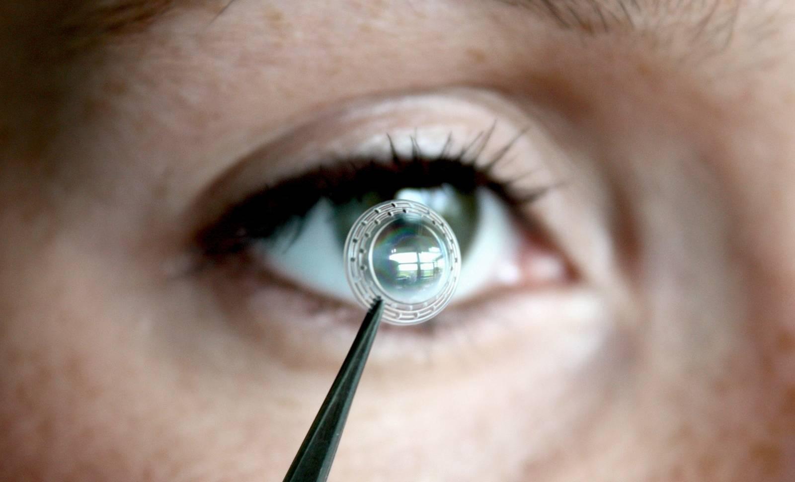 Acest Implant poate REDA VEDEREA Persoanelor care au ORBIT