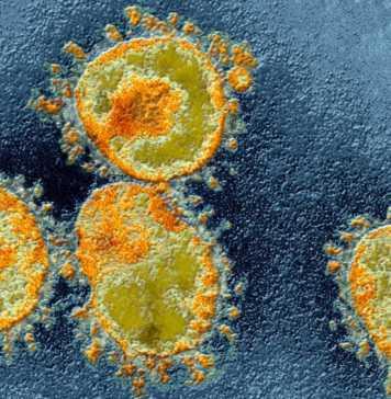 Coronavirus Romania Cazuri Vindecari 1 Aprilie
