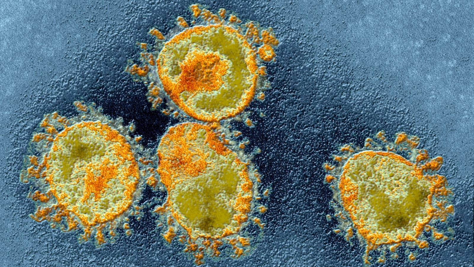 Coronavirus Romania Cazuri Vindecari 17 Mai